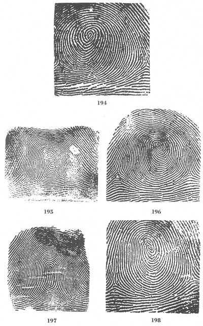 Different Types of Whorl fingerprint....! :) Fig194-198